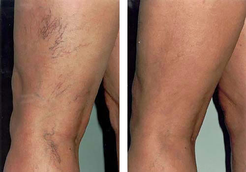 ta bort ytliga blodkärl på benen